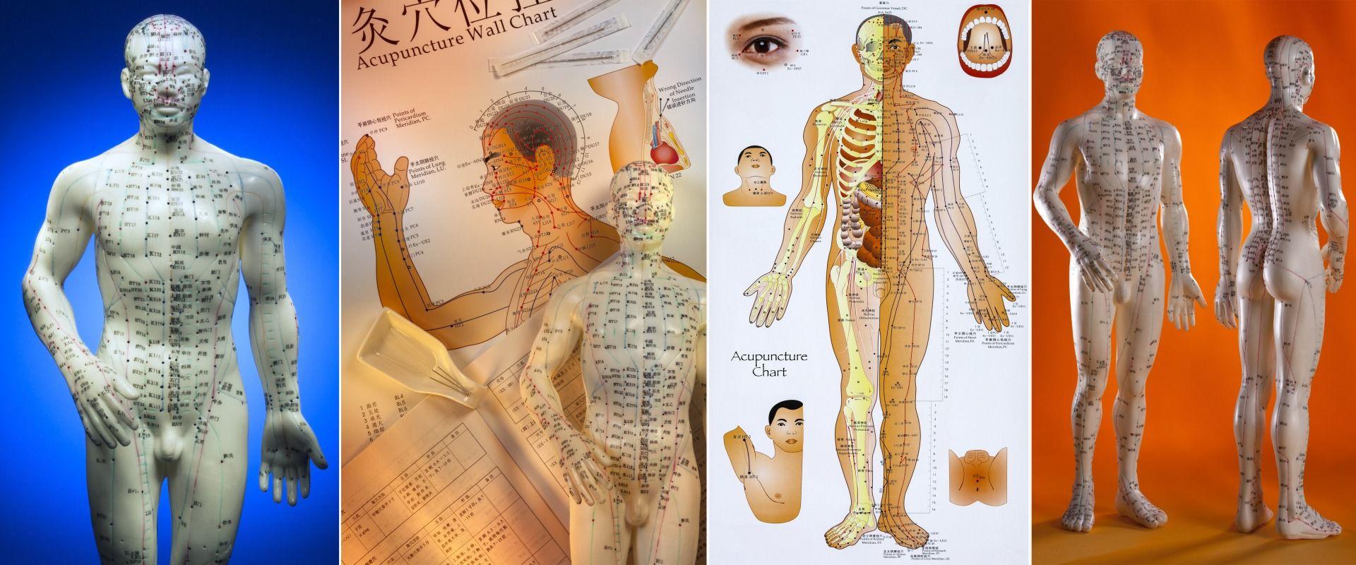 Akupunktur in der chinesischen Medizin