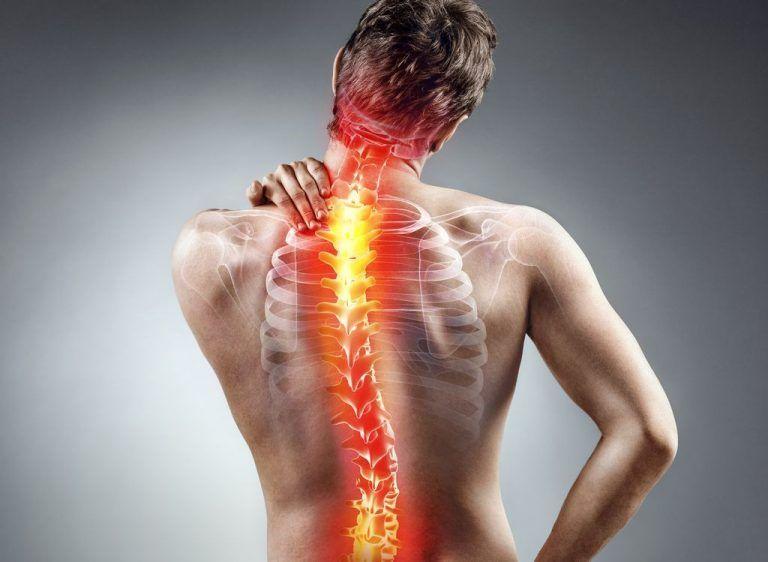 Nervensystem Wirbelsäule Schmerzen