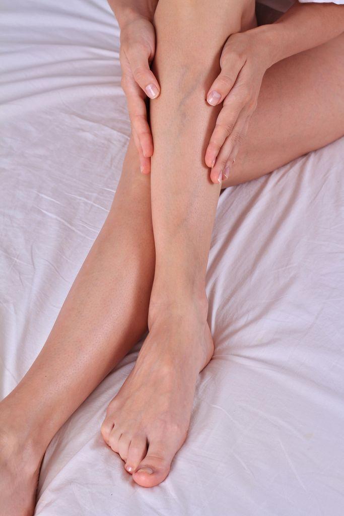 Schmerzende Venen am Bein von Frau